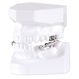 Herbst oral appliance